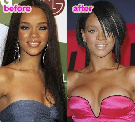 Rihanna avant et après chirurgie esthétique