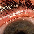 A Stepwise Approach To Acute Dry Eye
