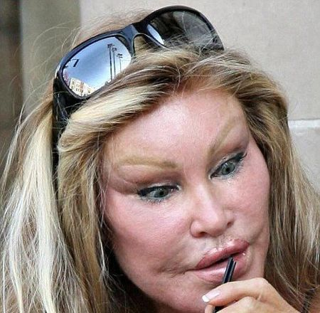jocelyn_wildenstein