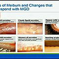 VIDEO: New paradigm for meibomian <b>gland</b> evaluation