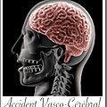 AVC > <b>brassage</b> <b>neuronal</b>