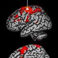 La magnétoencéphalographie permettrait de détecter un <b>stress</b> <b>post</b>-<b>traumatique</b>
