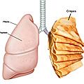 Lumière sur le pneumothorax spontané.