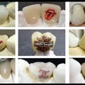 Tatouage des dents - ellington dental associates - docteur steven landman