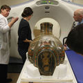 Hospital Radiologists Analyze Brooklyn Museum's Mummies and Make Discovery