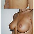 Augmentation mammaire 350 cc