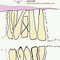Extraction d'une dent de lait / Accompagnement thérapeutique fleurs de Bach et homéopathie