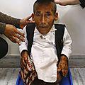 نيبالي سبعيني يدخل موسوعة غينيس العالمية كأقصر رجل في العالم